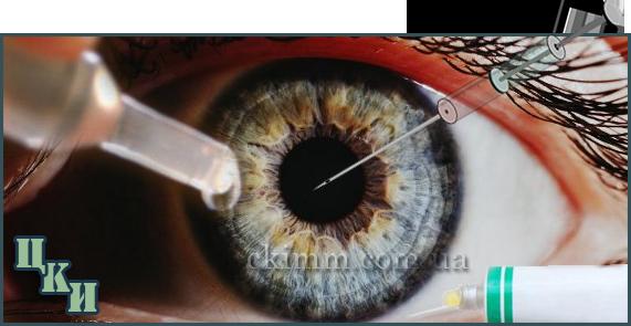 Как правильно вводить глазные препараты. Преимущественные различия методов.