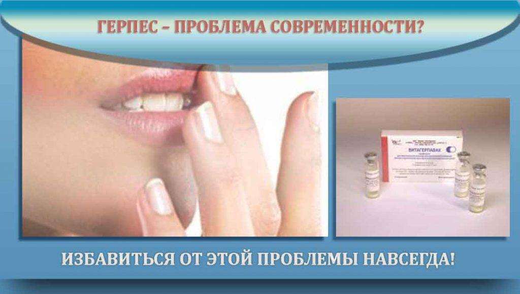 Витагерпавак вакцина от герпеса